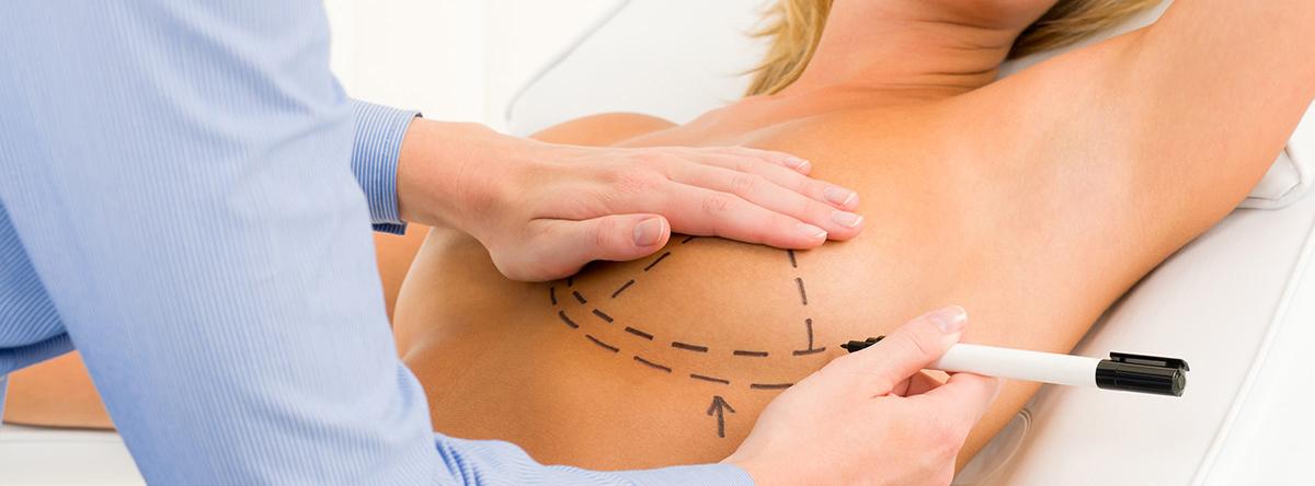 Preoperatorio y postoperatorio en cirugía estética