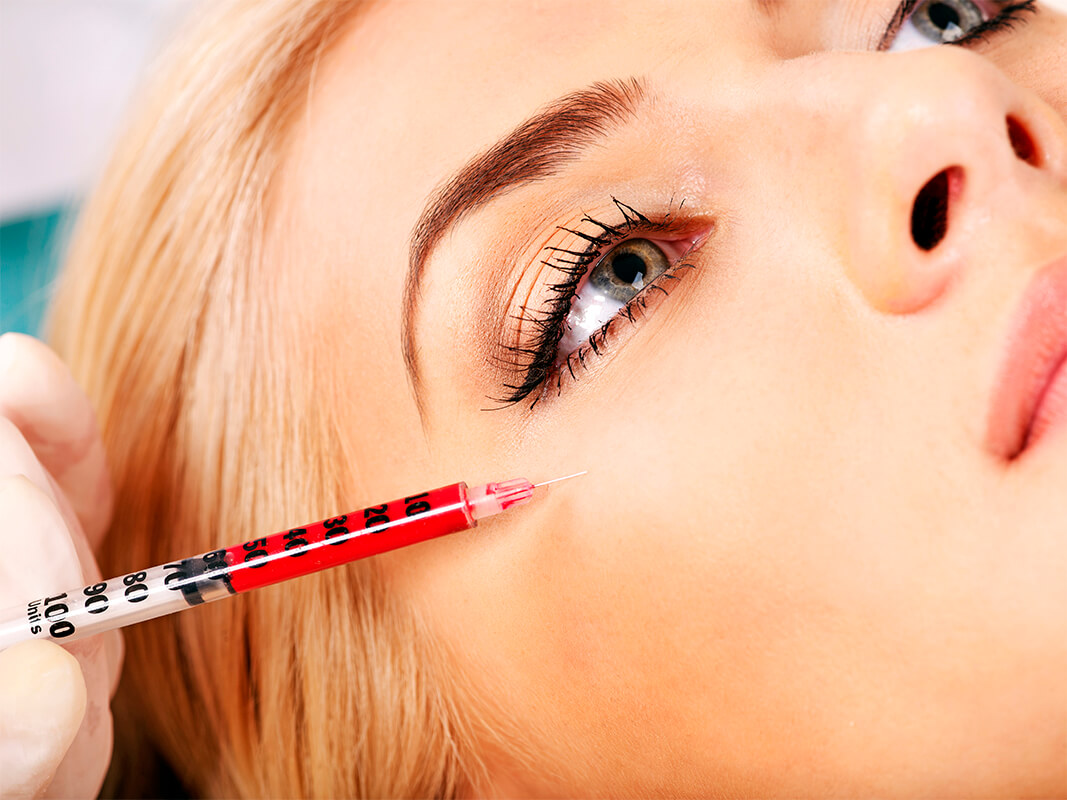 La toxina botulímica: un tratamiento eficaz de rejuvenecimiento facial